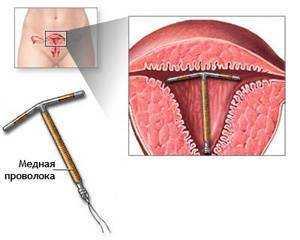 Фото вагіни на гінекологічному кріслі фото 248-546